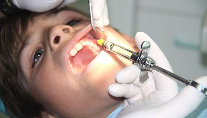 Herramientas de odontología: Jeringa dental