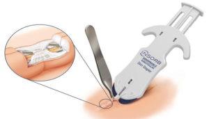 Grapas quirúrgicas